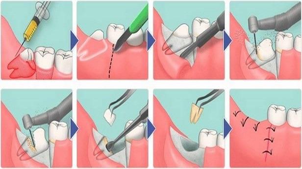 Удаление зуба мудрости: сколько заживает десна после такой операции