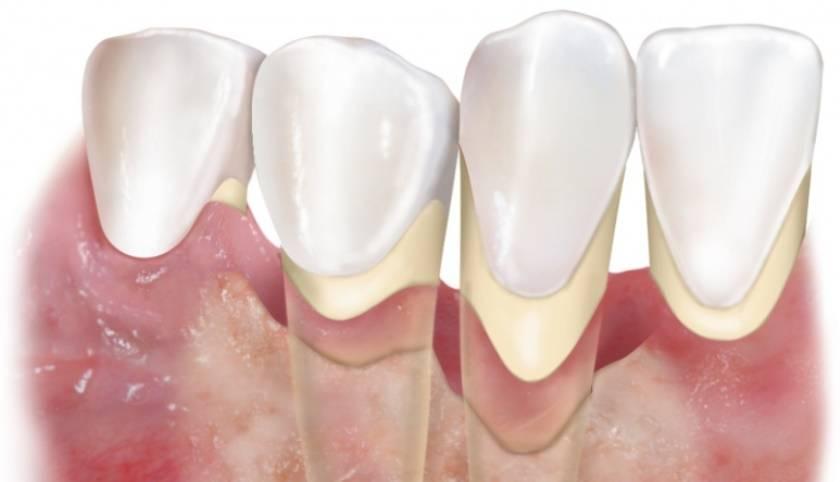 Можно ли протезировать зубы при пародонтозе, какие протезы и методы протезирования лучше
