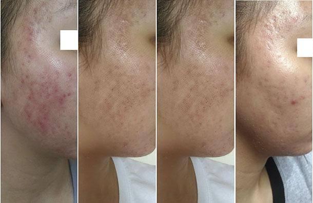 Как ухаживать за кожей после бритья: лучшие средства для мужчин и женщин