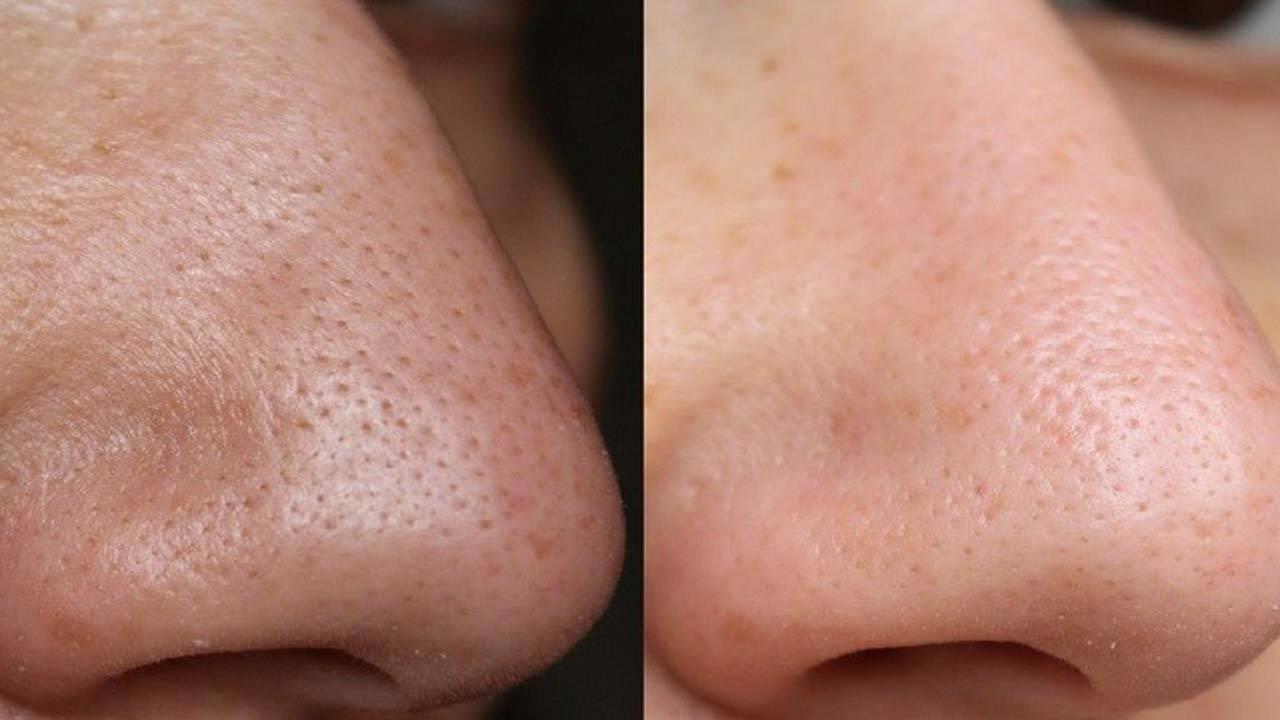 Черные точки на коже: 10 вопросов косметологу