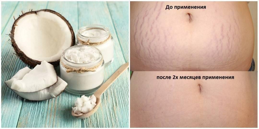 Топ 10 лучших кремов от растяжек после родов