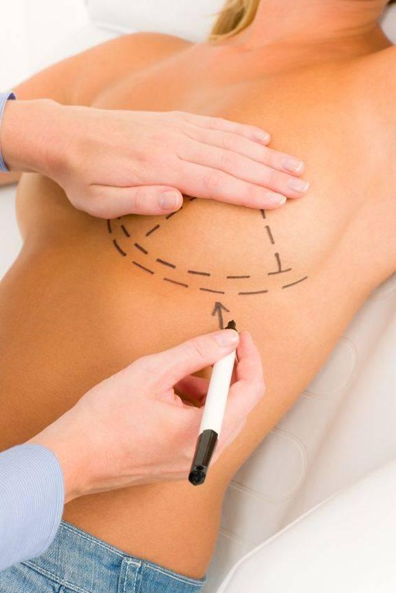 Коррекция (подтяжка) груди, коррекция ареол и сосков