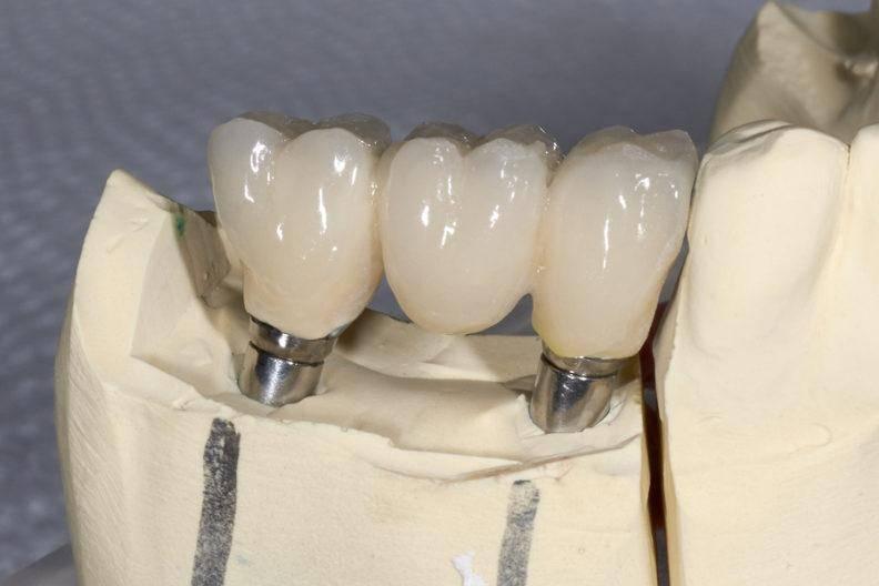 Мостовидные протезы зубов: виды, этапы изготовления, особенности