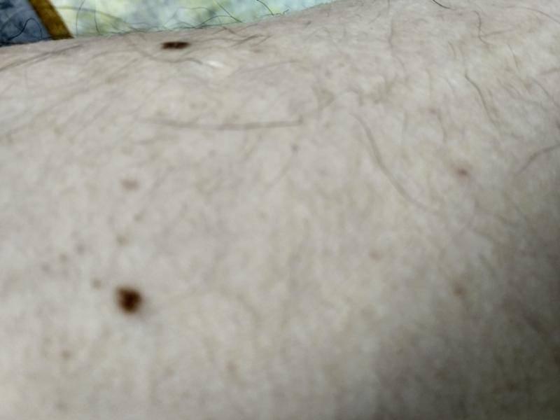 Как избавиться от черных точек на груди и сосках