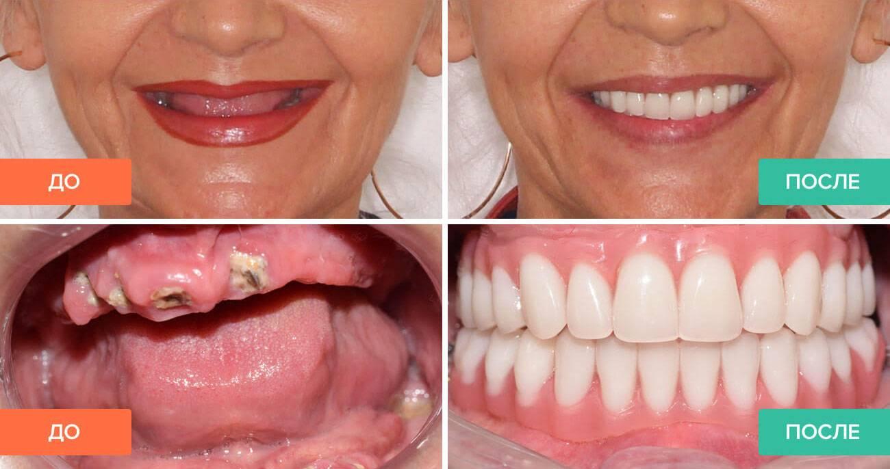 Имплантация нижней челюсти
