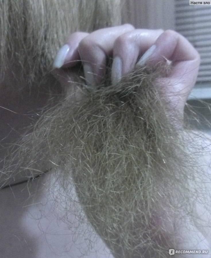 Сколько волос должно выпадать в день у человека?