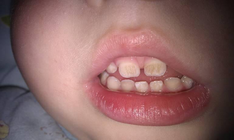 Причины появления налёта на зубах у детей, методы лечения и профилактики