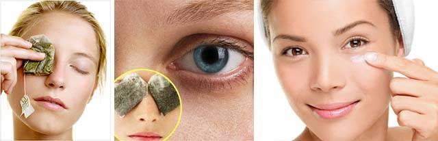 Петрушка для глаз: от отеков, кругов, синяков и мешков под глазами