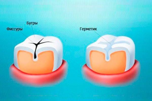 Герметизация фиссур зубов у детей – что это такое? запечатывание фиссур – за и против