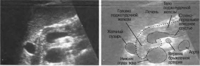Диффузные изменения поджелудочной железы: смертельно или нет