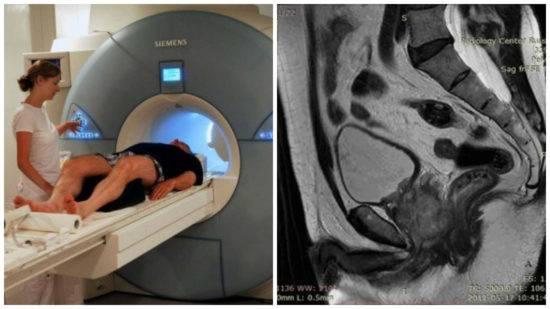 Что показывает мрт диагностика малого таза у мужчин?