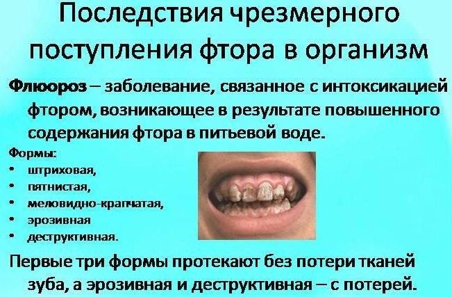 Как спасти зубы при флюорозе – польза и вред фтора для зубов, профилактика избытка фтора