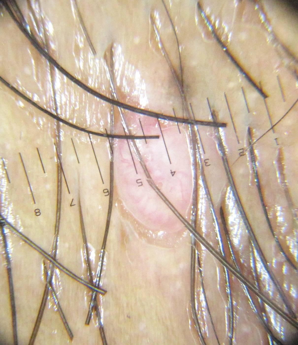Контагиозный моллюск у женщин: фото, причины, удаление