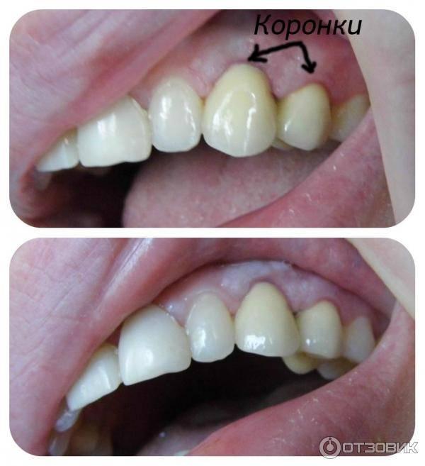Лучшие коронки для установки на передние зубы