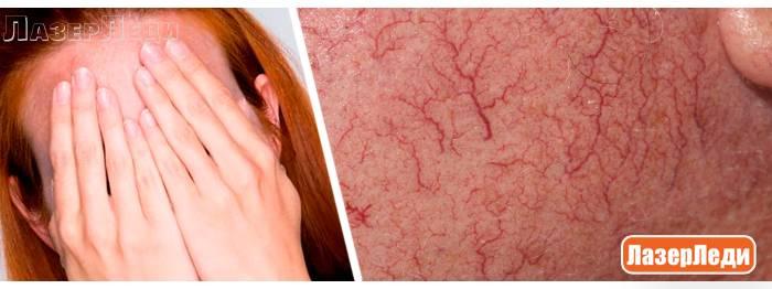 Виды редких заболеваний кожи человека