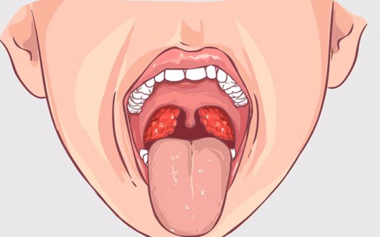 Опухли гланды: основные причины, симптомы, лечение заболевания, профилактика