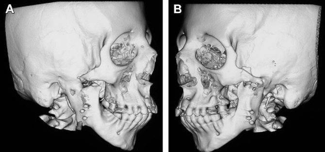 Воспалительные заболевания височно-нижнечелюстного сустава и их исходы в детском возрасте