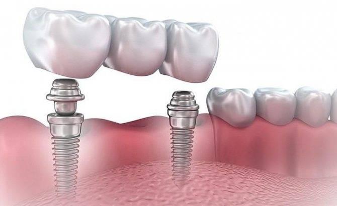 Особенности имплантации нижних зубов