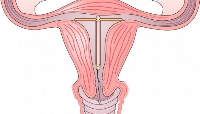 Беременность с вмс