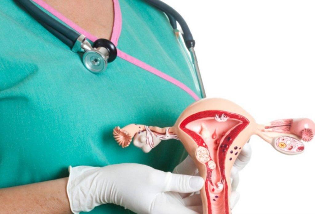 Лучевая терапия при раке шейки матки: можно ли рассчитывать на исцеление?