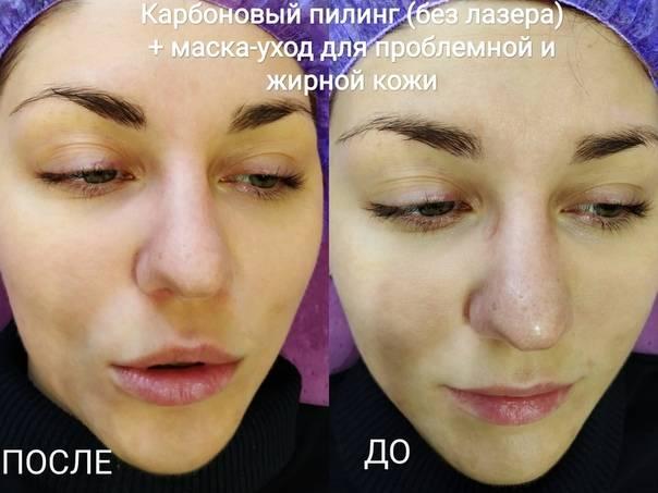 Карбоновый пилинг: отзывы косметологов и женщин