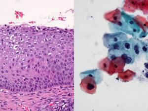 Гиперкератоз плоского эпителия шейки матки лечение народными средствами