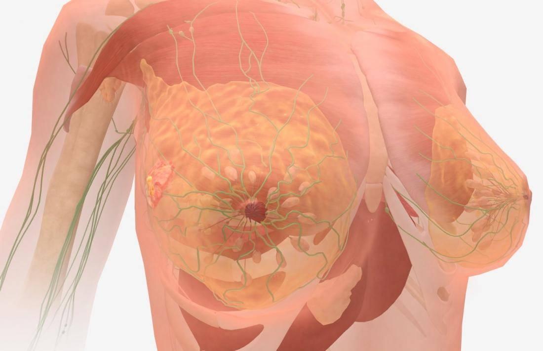 Как проявляется рак яичников