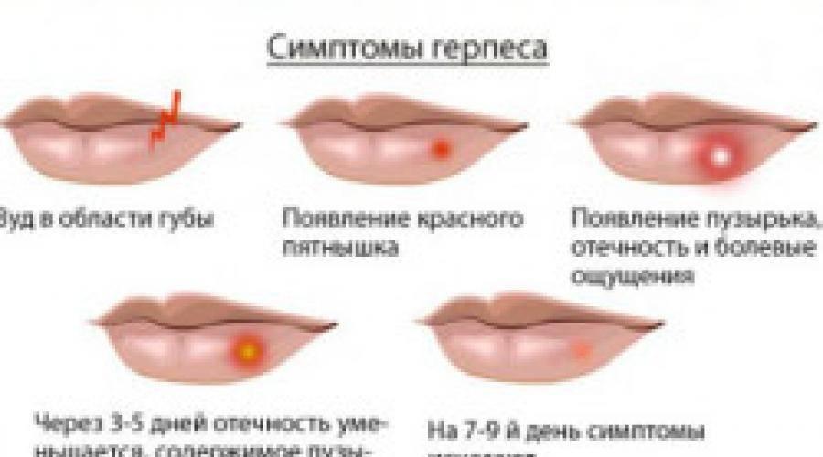 Зубная паста при герпесе на губах