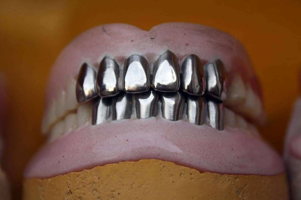 Штампованные коронки— средство защиты здоровых зубов