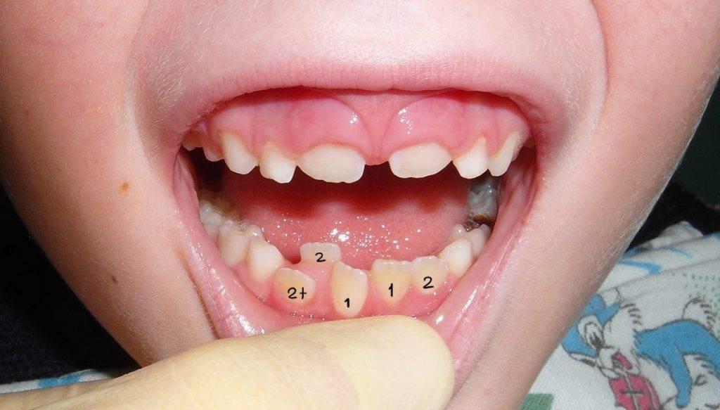 Выпал зуб и долго не растет новый. молочные зубы выпали, а коренные не растут. в чем причина и что делать