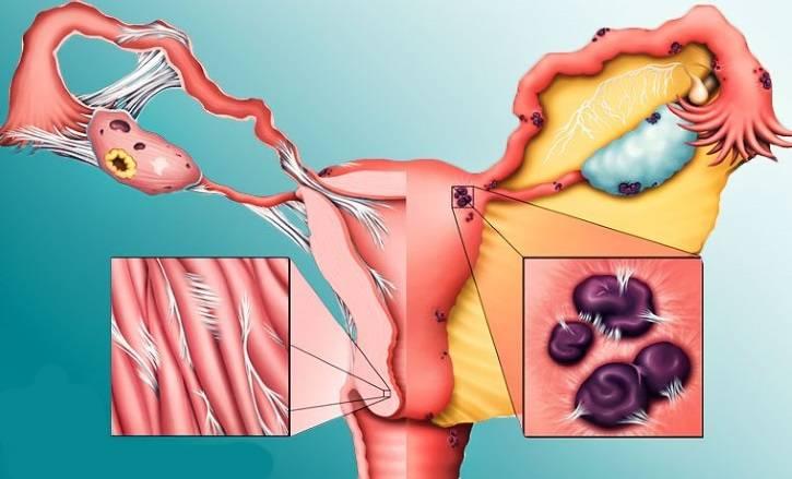 Эндометриоз матки: симптомы, формы, лечение, возможные последствия