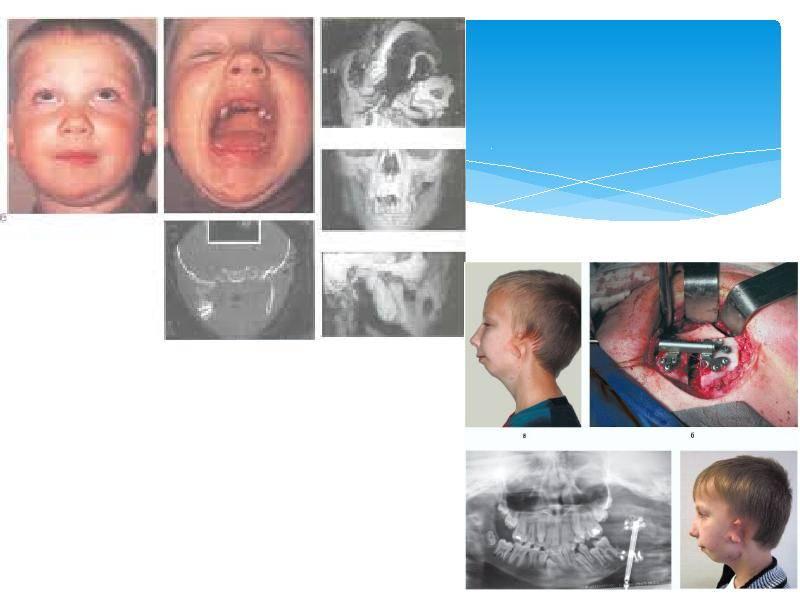 Рентген височно-челюстных суставов