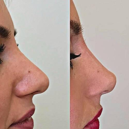 Как изменить, исправить, выпрямить форму носа без операции?