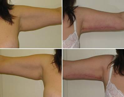 Подтяжка груди (мастопексия): показания, подготовка, как проводится, восстановление после