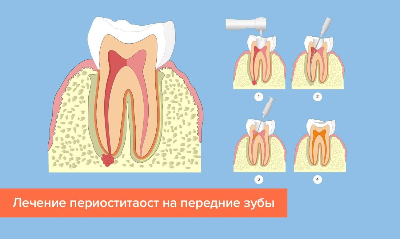 Как быстро снять опухоль от зубного флюса в домашних условиях: лечение, как снять отек на щеке