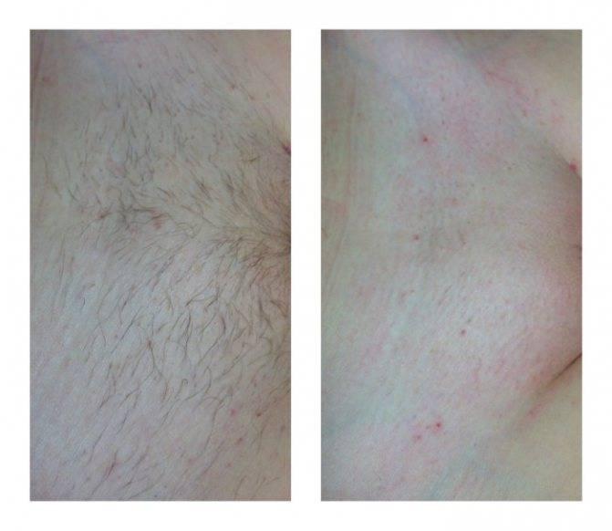 Как убрать красные точки (пятна) после бритья