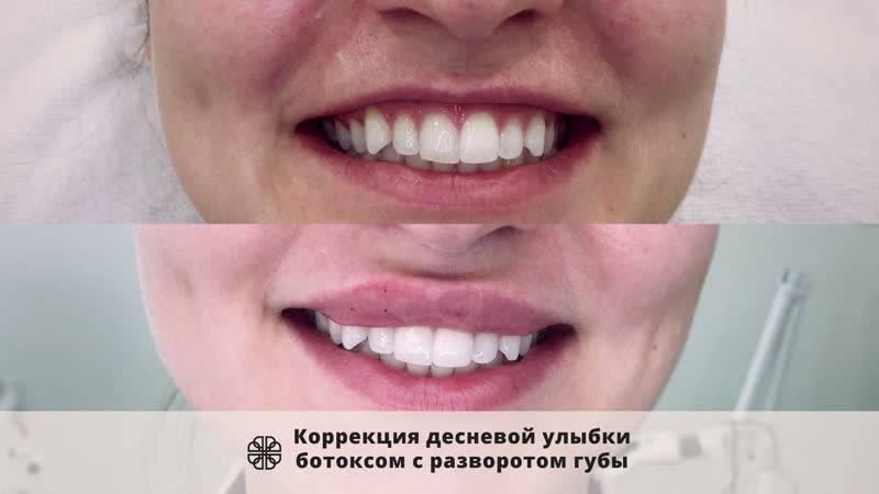 Десневая улыбка коррекция ботоксом