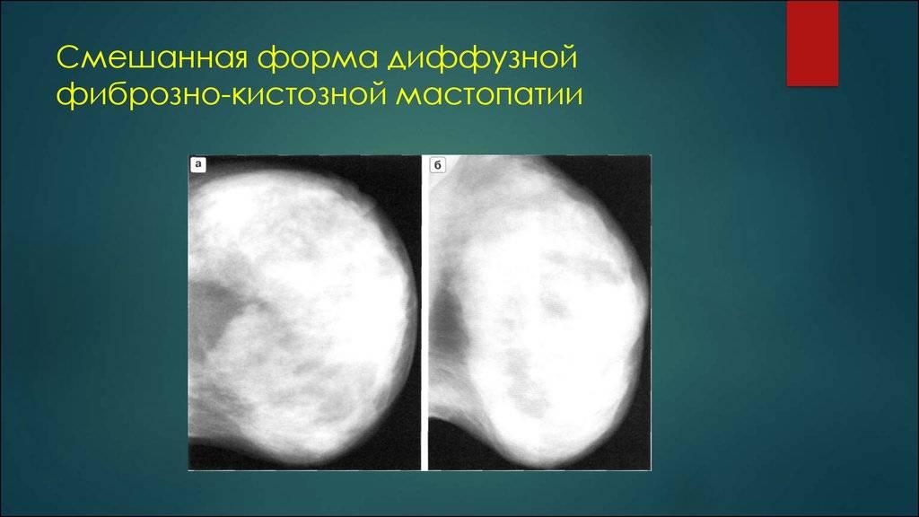 Симптомы и лечение железисто-фиброзной мастопатии