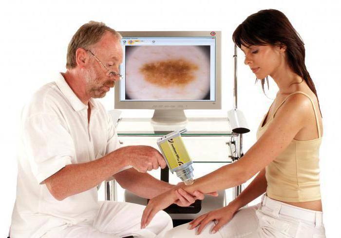Дерматоскопия: преимущества, точность, применение