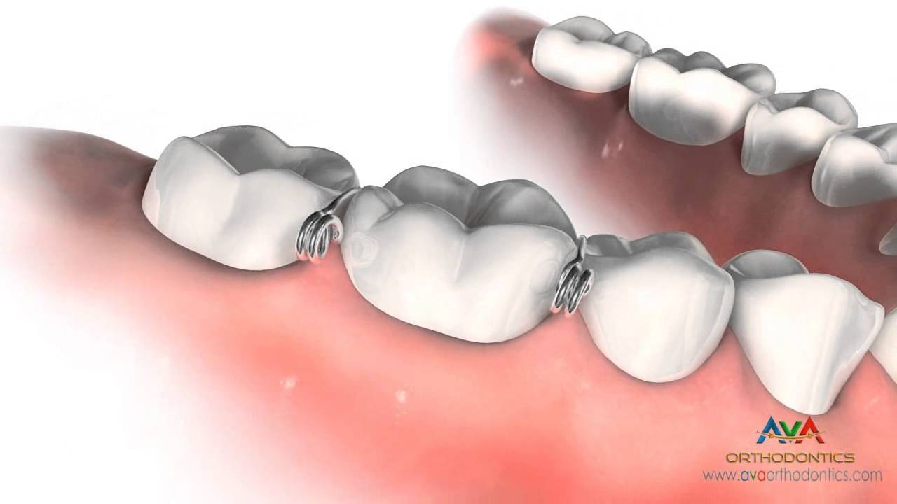 Металлокерамические мосты на зубы