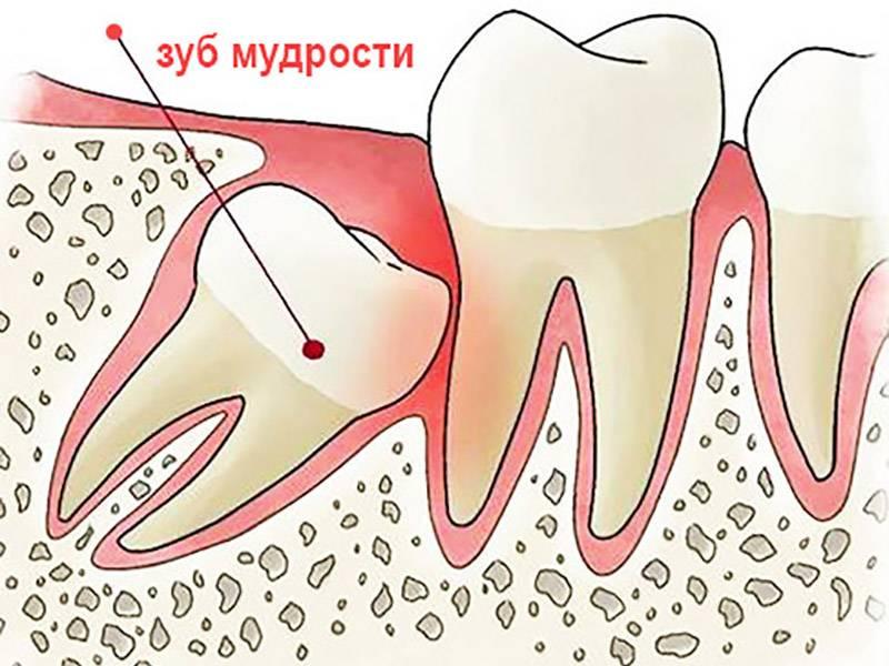 Болит горло после удаления зуба мудрости: что делать?