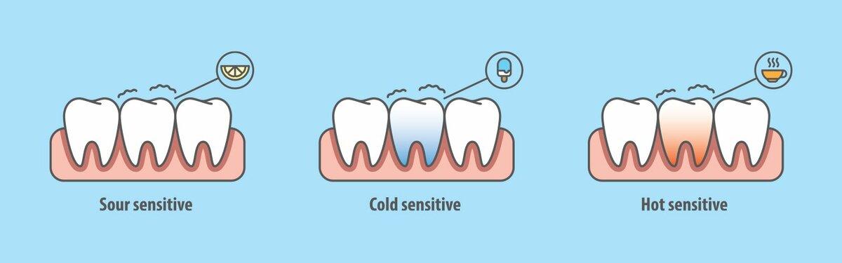 Чувствительность зубов при беременности: что с ней происходит на ранних и поздних сроках?