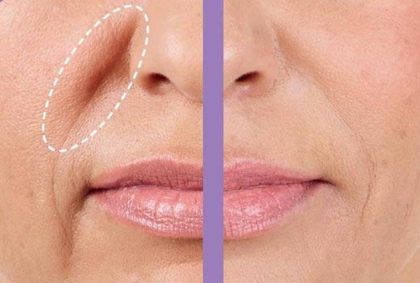 Как убрать морщины над верхней губой в домашних условиях и у косметолога