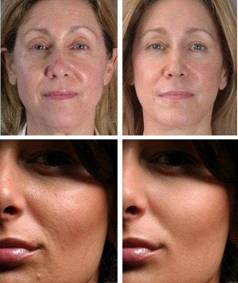 Мезотерапия лица с фото до и после и отзывами