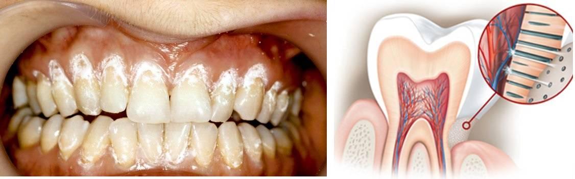 Причины чувствительности зубов при беременности