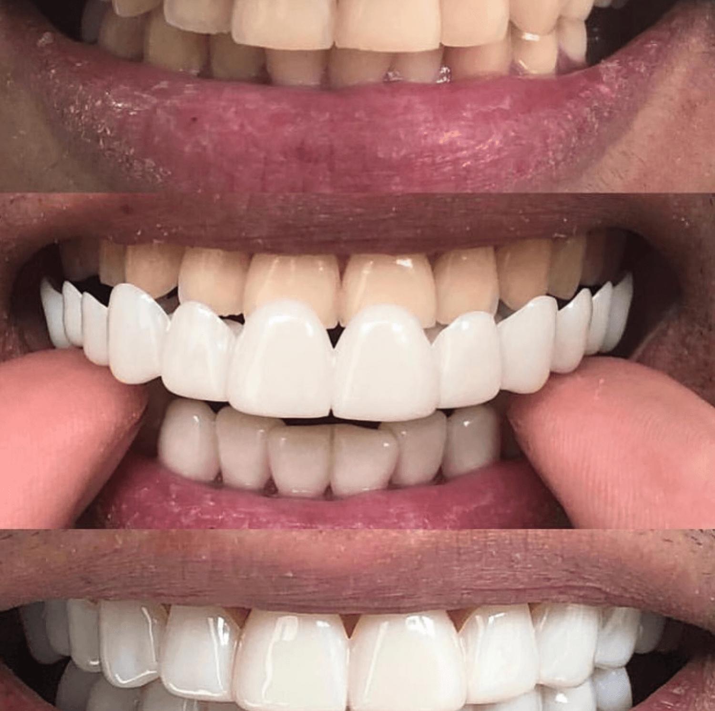 Как происходит наращивание и реставрация зубов: фото до и после коррекции, плюсы и минусы процедуры