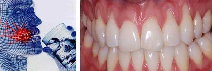 Эрозия зубной эмали: причины, симптомы, лечение