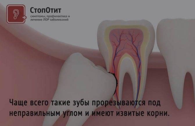 Во рту лезет зуб мудрости, болит десна и горло: что делать и как снять боль?