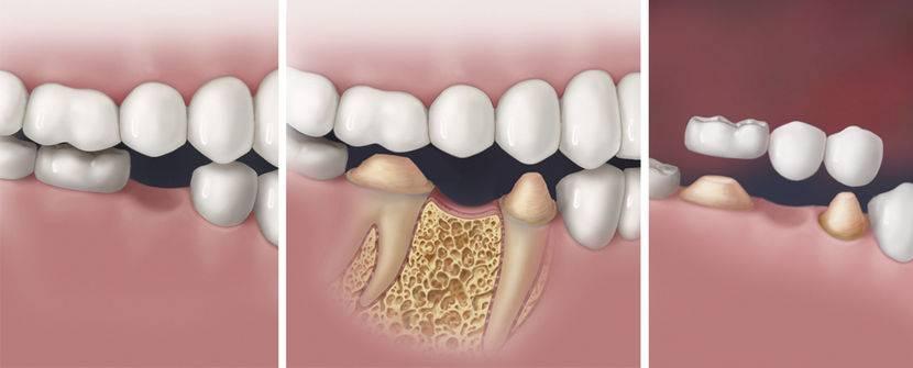 Имплантация жевательных зубов — какой имплант и коронку лучше ставить?