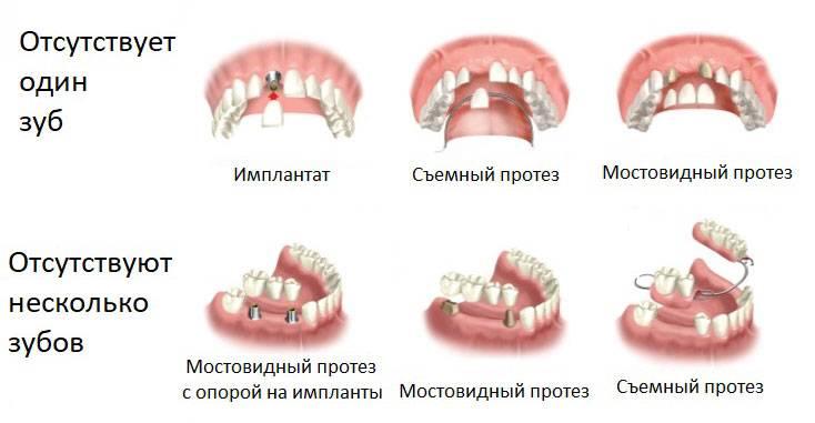 Виды протезирования при отсутствии большого количества зубов или полной адентии: какой протез лучше поставить?